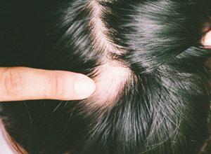 alopecia: causas e tratamentos
