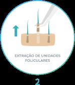 Método FUE - extração de unidades foliculares