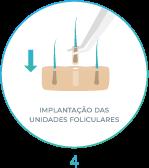 Método FUE - implantação dos folículos nas áreas calvas