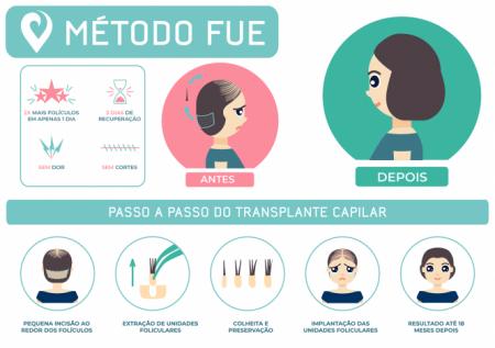Transplante Capilar Feminino Metodo FUE